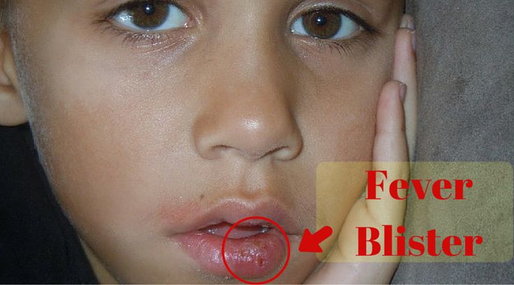 A fever blister is also known as a cold sore. It is a group of tiny blisters that is situated either in or near the mouth. Commonly it is situated on the border of the lips.  It may also be located at chin, nostrils, cheeks, the palate and gums.It is highly contagious and spread by skin contact an  #fever #treatment #causes #blister #health