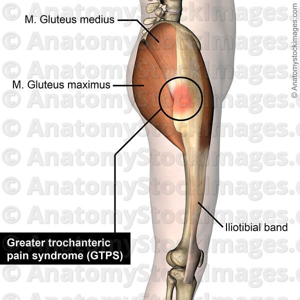 19 Best Greater Trochanteric Pain Syndrome Images On Pinterest