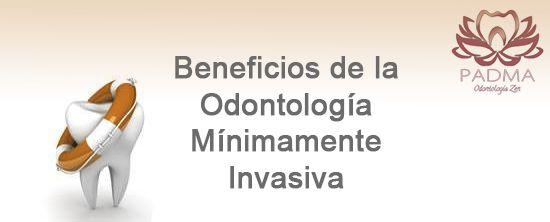 Beneficios de la Odontología Mínimamente Invasiva