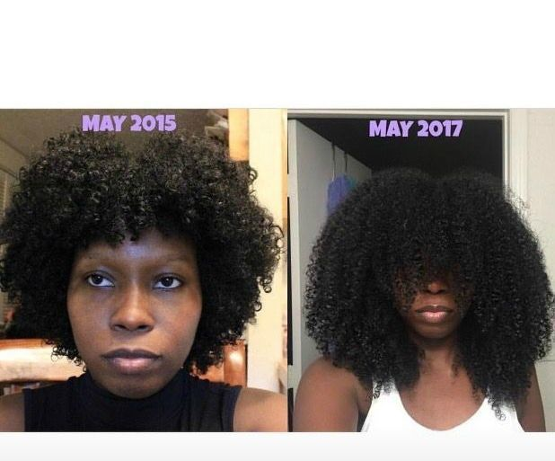 Hair Growth For Black Women Using All Natural Remedies For Long 4b