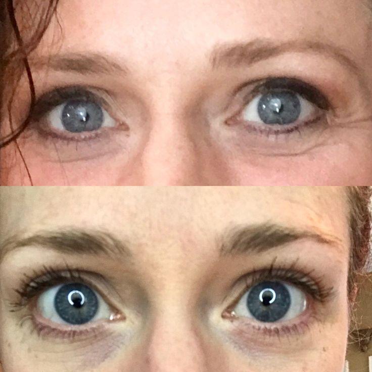 Diy lash serum for long lashes natural and safe long