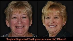 tough dental problems? Get rid of all kinds of dental issues, here at Sun City Dental Clinic. Preview our expertise of dental implants in Surprise, AZ by visiting our website.