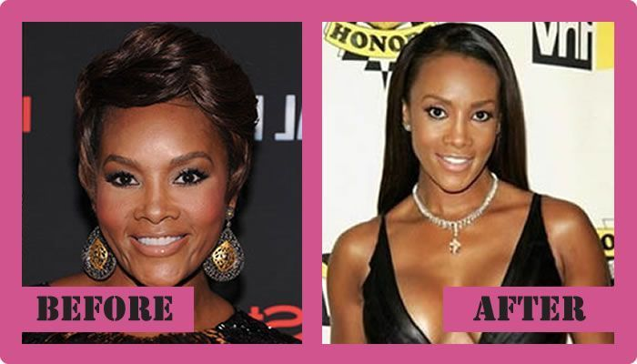 Vivica Fox Plastic Surgery Before And After Vivica Fox Plastic Surgery  #VivicaFoxPlasticSurgery #VivicaFox #gossipmagazines