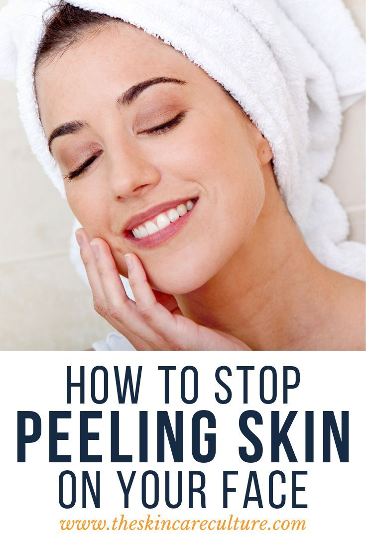 How To Stop Peeling Skin On Your Face In 2020 Peeling Skin Natural Facial Skin Care Dry Peeling Skin