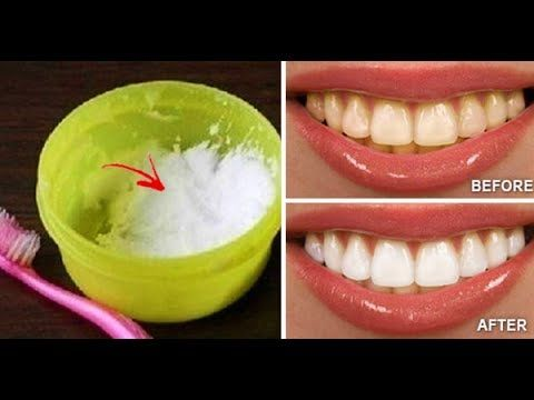 How to Naturally Whiten Your Teeth In 3 Minutes at Home - YouTube