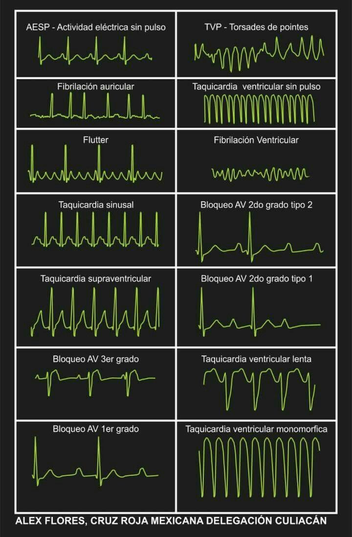 Ritmos cardiacos