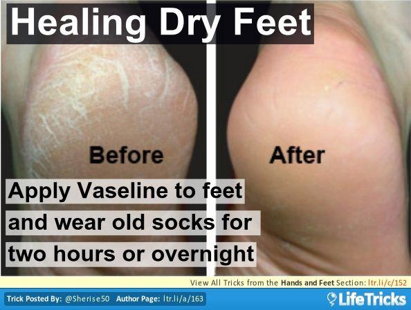 Healing Dry, Cracked Feet