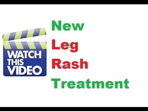Leg Rash Treatment Works Fast - Health Product Business