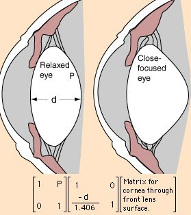 Eye accommodation is the act of physiologically making adjustment to the crystalline lens elements to vary the power of refraction and bring into sharp focus close and far objects. The eye accommodates by changing the lens' curvature which is performed by the ciliary muscles. They relax the suspensory ligament fibers, narrow the ciliary body diameter, …