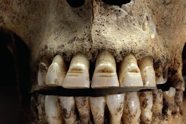 Viking men would file horizontal lines into the enamel on their front teeth and paint in red resin.