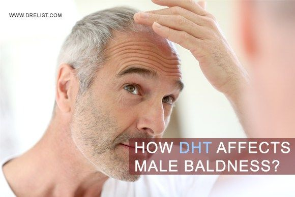 How #Dihydrotestosterone (DHT) Affects #Male #Baldness? #DHT is one of the key molecules involved in the pattern baldness. DHT is #androgenic in nature and is responsible for the development of male traits.