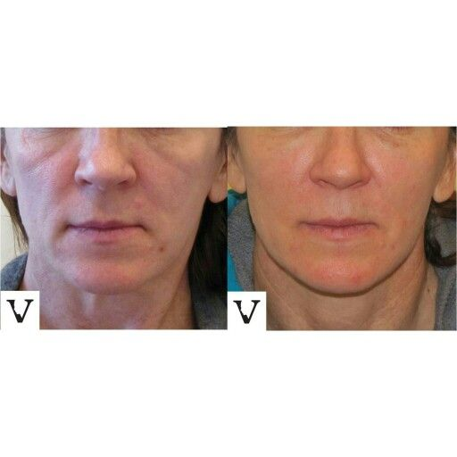 Non-surgical facelift with Sculptra, lasts about 2 years www.visagesculpture.com #boston #facelift #face #radiesse #juvederm #botox #sculptra #rhinoplasty #nosejob #alternative #injection #expert #newton #asymmetry #correction #reconstruction #hiv #lips #eyes #beauty #taste #youth #young #proportion #selfesteem #juvederm #belotero #merz #galderma #allergan #botox #sculptra #rhinoplasty #nosejob #lips #eyes #chin #augmentation #jaw #reduction #face #slimming #visagesculpture #mashabanar…
