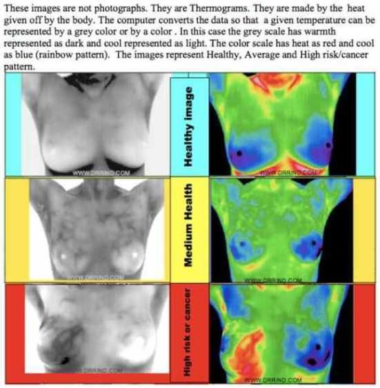 Thermography for breast exams