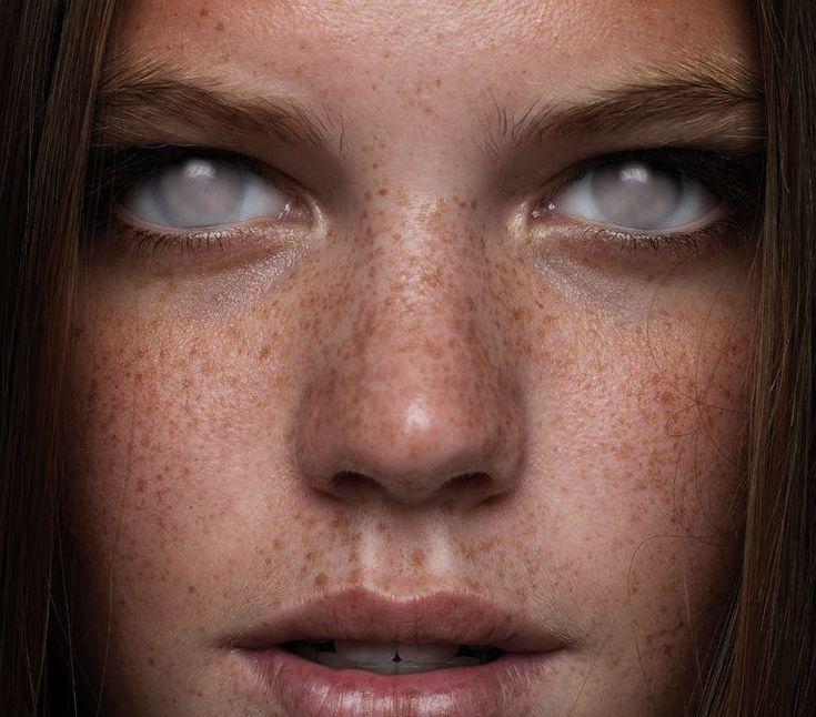 Слепые люди фото глаз