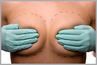 Implantes de Pecho  #cirugiadeabdomen #Liposucción #Vaser #Abdominoplastía #Lipoaspiracion #CirugiaPlastica #cirugía #lipo #liposuccion #lipovaser #ImplantesdePecho #aumentodepecho