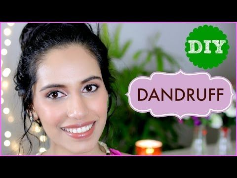 (DIY) How to get rid of Dandruff FAST permanently (Flaky & Itchy Scalp) - Himani Wright