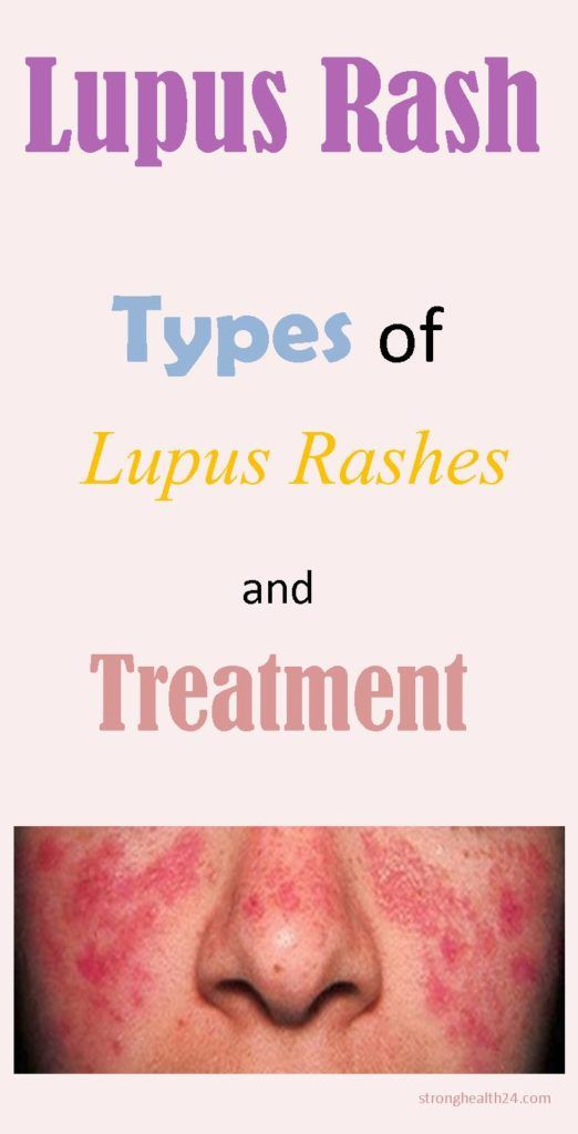 What is the Lupus Rash?Lupus rash is a type of autoimmune disease during which antibodies can't tell the distinction between healthy and unhealthful cells. This causes them to attack healthy cells, resulting in pain and different manifestations. This ends up in damage to the skin, joints,...