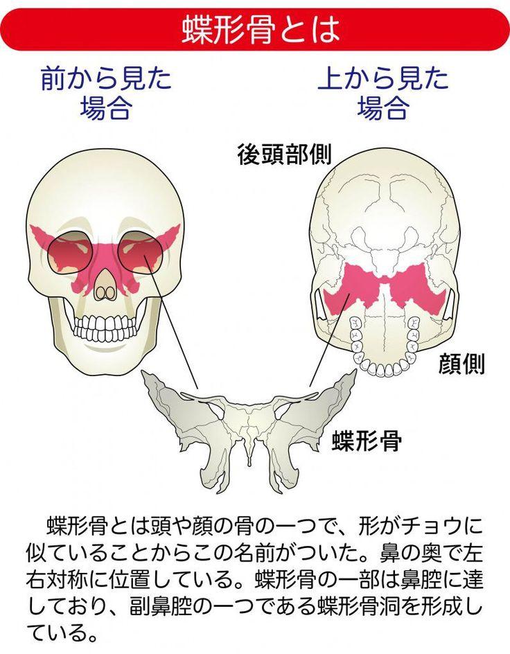 副鼻腔炎(蓄膿癥)の対策①鼻水・鼻づまりも後鼻漏も頭痛も ...
