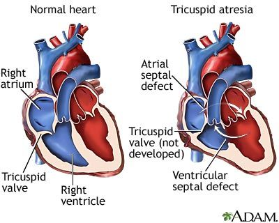 Tricuspid [valve] Atresia - when the tricuspid valve is underdeveloped and sealed, instead of divided with three cusps (or leaflets).