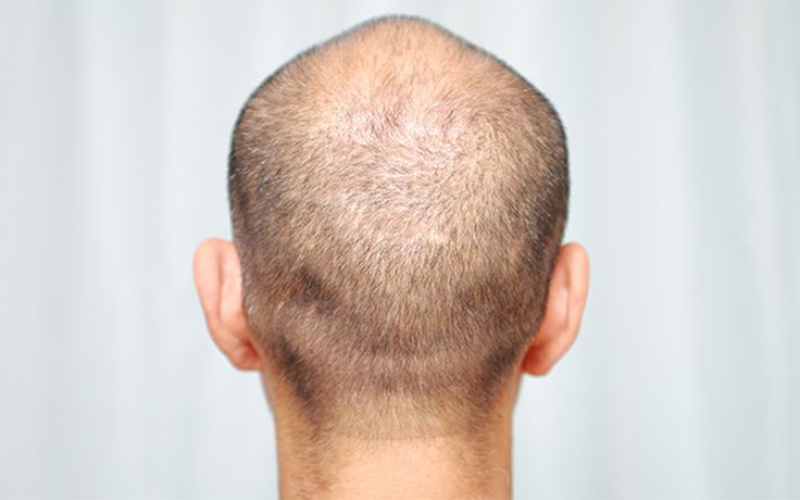 Hair Transplant Costs - How To Save It? - http://www.hairtransplantturkey.co/wp-content/uploads/2015/06/hair-transplant-costs-how-to-save-it.jpg