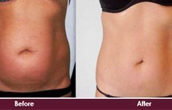 Prettislim Non Surgical Tummy Tuck Before And After – #after #before #prettislim…