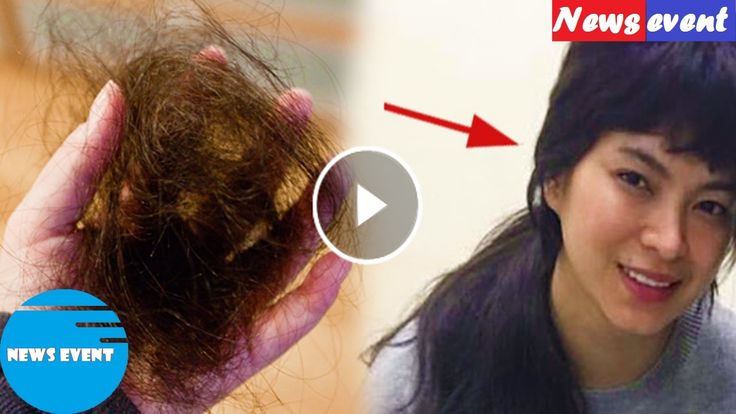 SHOCKING  Angel Locsin suffers from hair loss! WHY  Read this