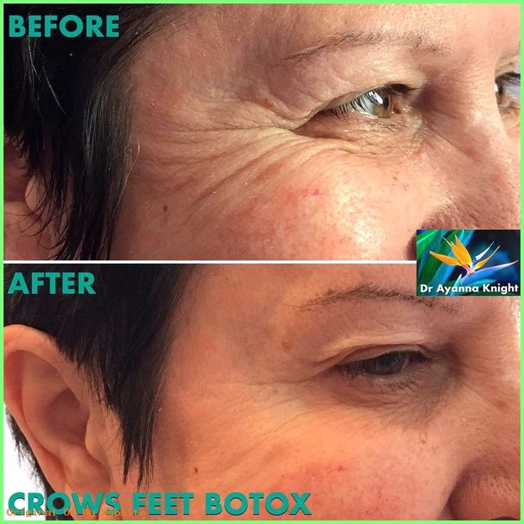 Revision Rhinoplasty | More fabulous, natural results following anti-wrinkle injections with …
