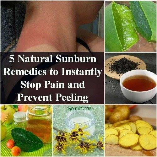 Natural Sunburn Pain Remedies and Peeling Prevention...for pigment ly  challenged ppl!
