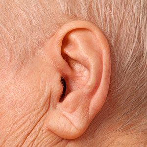 What Your Wrinkles Say About Your Health - Grandparents.com