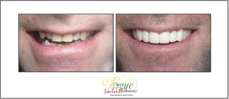 Tired of hiding your smile from others? Wish you could finally do something about your discolored, cracked, or missing teeth? But can't afford expensive works? Ask about our SNAP ON SMILE.  Vogue Smiles Melbourne can help you improve your smiles. https://heartandsoulwhisperer.com.au/the-artist/, http://drzenaidycastro.com.au/, http://melbournecosmeticdentistry.com.au/, /, https://heartandsoulwhisperer.com.au #COSMETICDentistMelbourneCBD #DrZenaidyCastro #Heart&SoulWhispererArtGallery