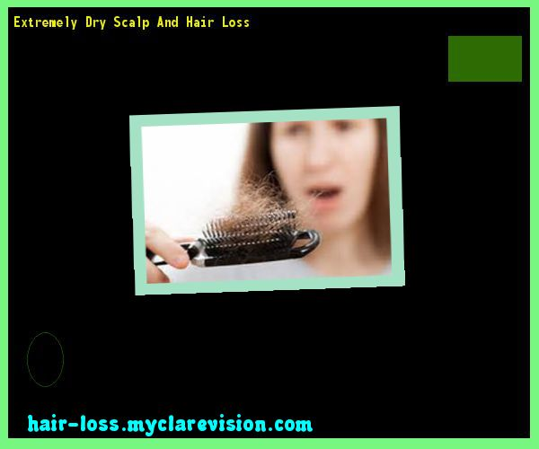 Extremely Dry Scalp And Hair Loss 121301 - Hair Loss Cure!