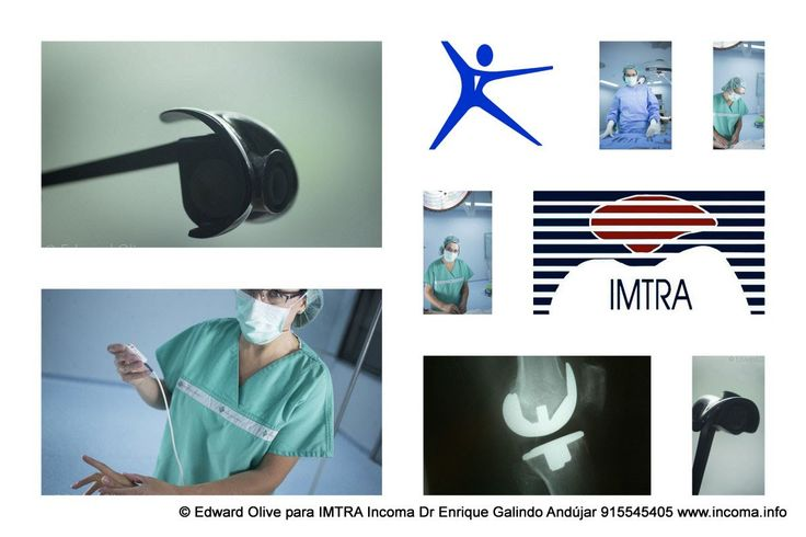 Knee Replacement with custom guides in Madrid Spain Web: http://www.imtra.eu/ Doctor Enrique Galindo Andujar IMTRA Incoma traumatology clinic in Madrid Spain
