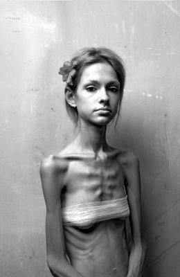 Dangers, risques pour la santé - La grande illusion de l'anorexie