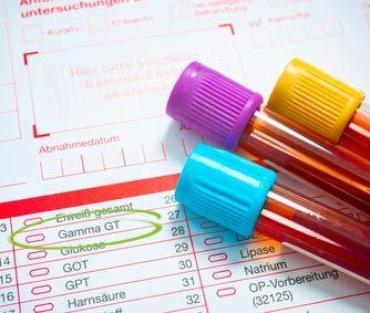 Ein Auswertungsbogen des Blutbild mit Gamma GT Wert