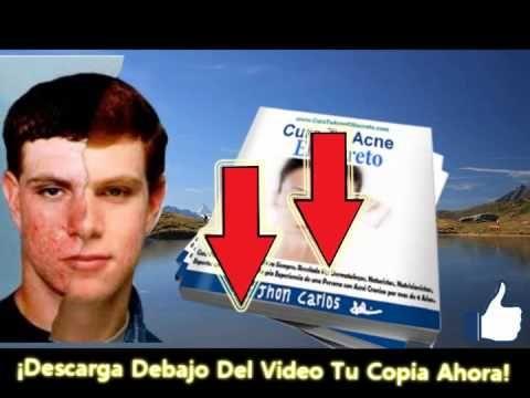 cómo curar las cicatrices del acné naturalmente cómo prevenir el acné - http://solucionparaelacne.org/blog/como-curar-las-cicatrices-del-acne-naturalmente-como-prevenir-el-acne/