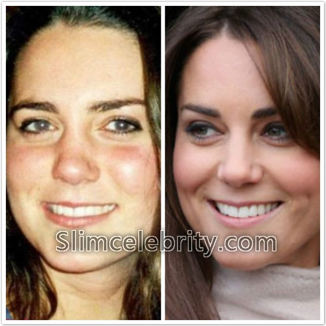 Kate Middleton Plastic Surgery Before and After Photos Nose Job, Possibly Lipsouction and Botox