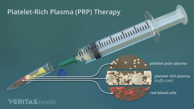 What is a platelet-rich plasma injection? This article offers an in-depth explanation of how PRP injection is made, and how it can be used to treat arthritis.