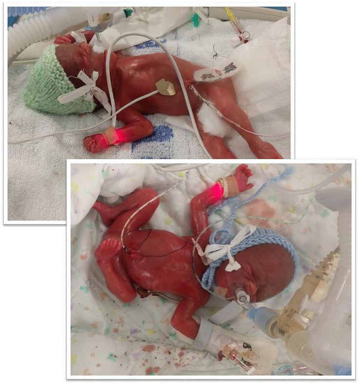 Miracle Babies. The story of our twin boys born at 23 weeks and our journey through NICU.