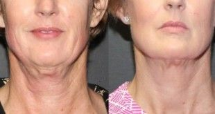how to tighten loose neck skin
