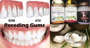 receding gum relief