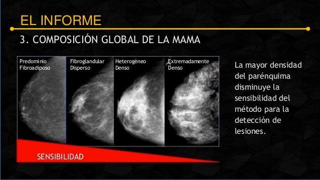 TecniScan Científico: Tomosíntesis o Mamografía en Tercera Dimensión, Detección temprana de Cáncer