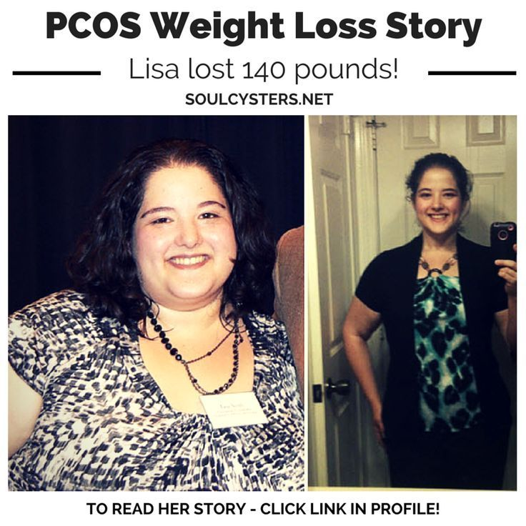 Aldactone Weight Loss Pcos