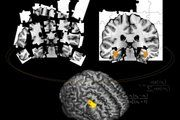Is the amyloid hypothesis the right path to find a treatment for Alzheimer's disease?
