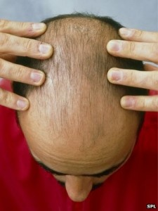 Male Baldness Indicates Heart Risk @http://educatesansar.com/male-baldness-indicates-heart-risk/