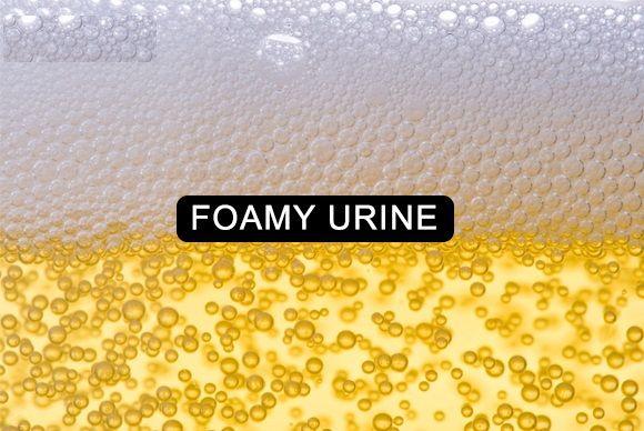 Dark foamy urine