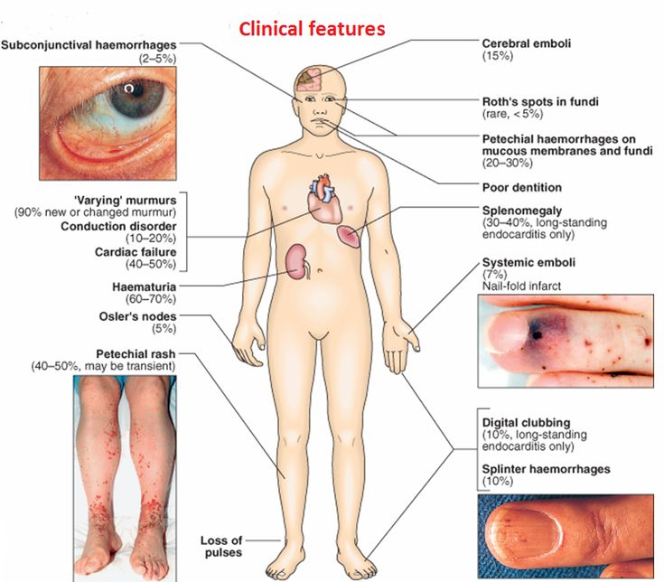 Endocarditis is an infection of the heart's valves or its inner lining (endocardium). It is most common in people who have a damaged, diseased, or artificial heart valve.