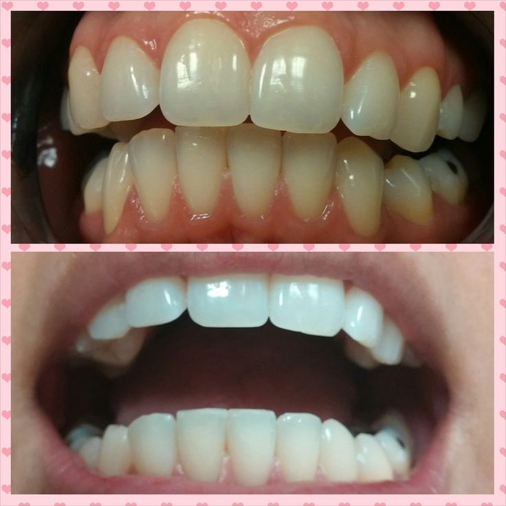 Led Laser Teeth Whitening Before Amp After Teeth