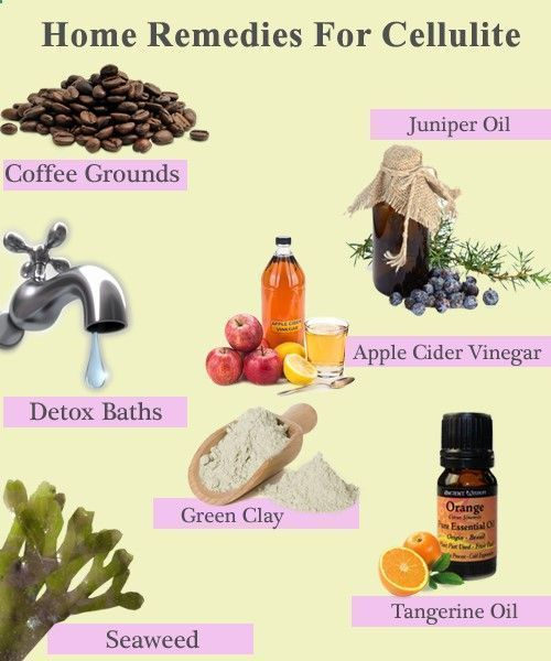 How to lose cellulite? Eliminate cellulite with best home remedies for cellulite. Natural ways for cellulite Reduction. DIY cellulite creams, cellulite cure #EliminateCellulite #CelluliteCream