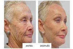 Abuelas de 70 años lucen nuevamente de 40: ¡No podrá creer sus transformaciones!