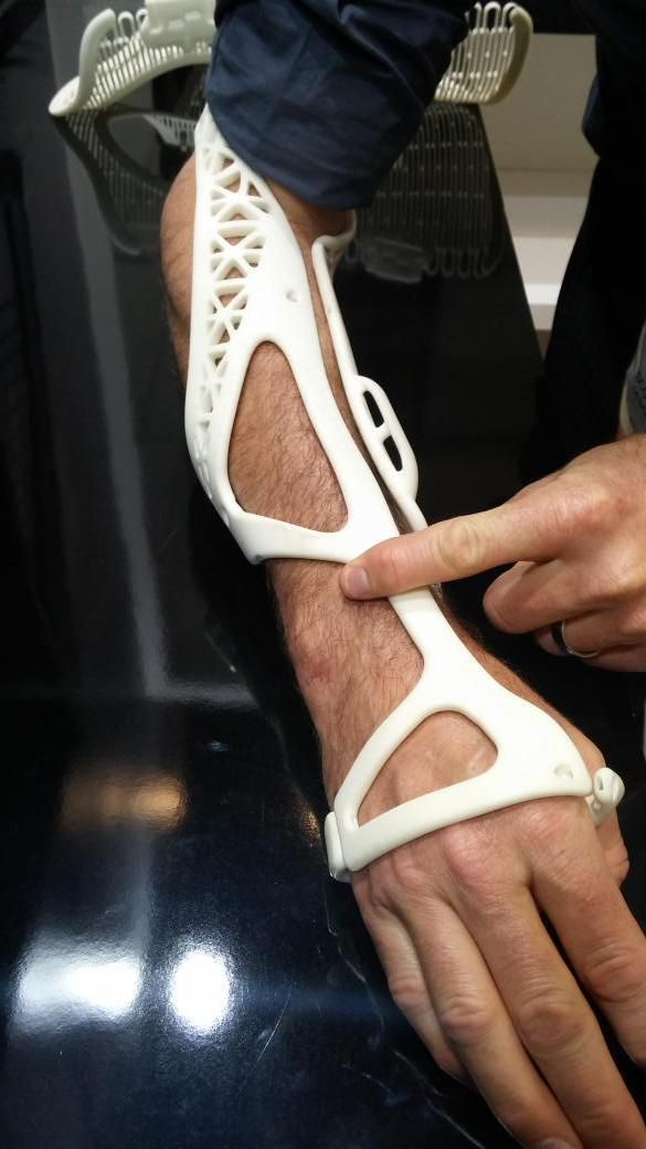 The first patient to ever have a shower with a 3D printed cast on a broken arm. #digitalhealth #3Dprinting